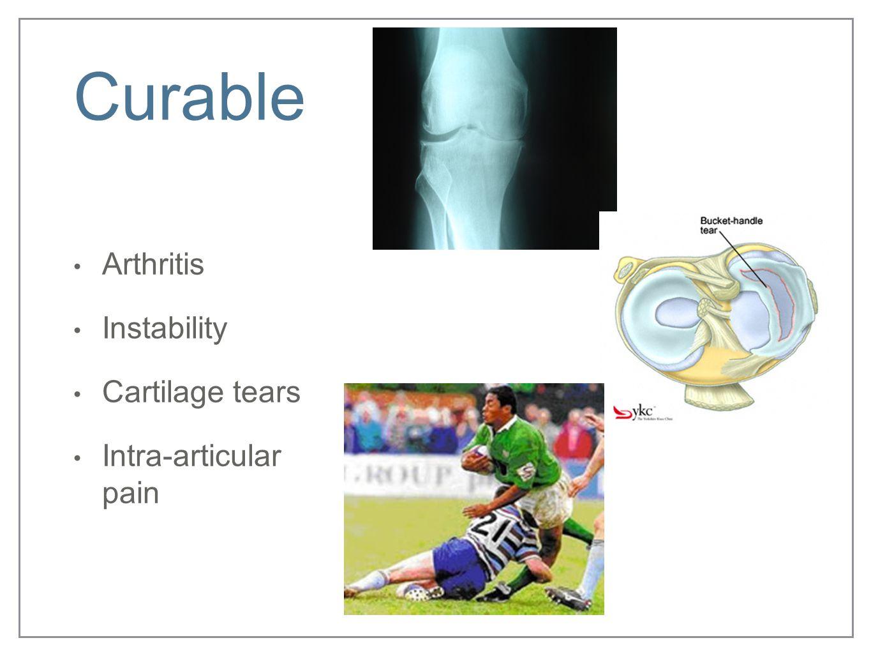 Curable Arthritis Instability Cartilage tears Intra-articular pain