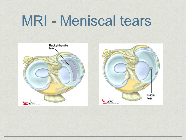 Meniscal Repair vs Resection
