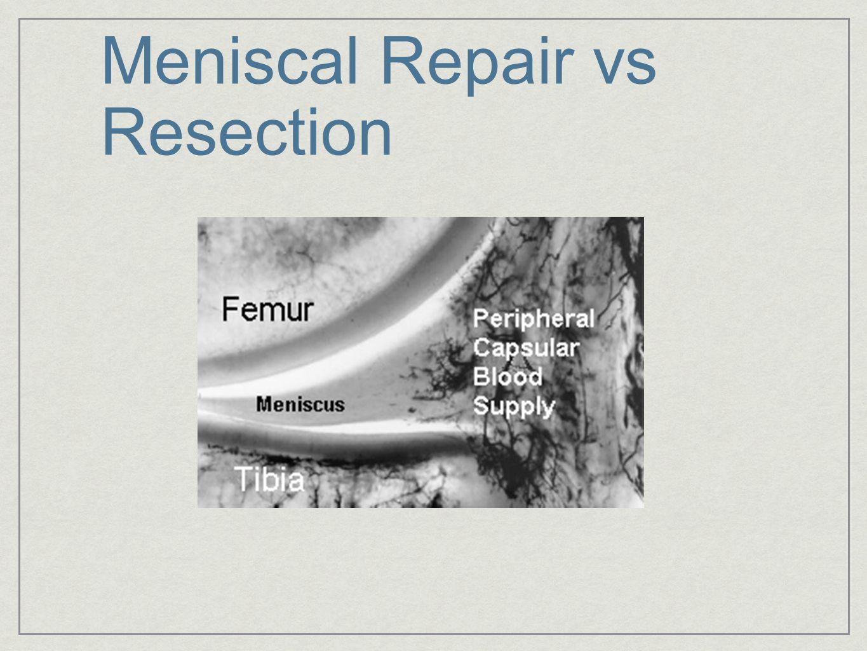 Meniscal Repair
