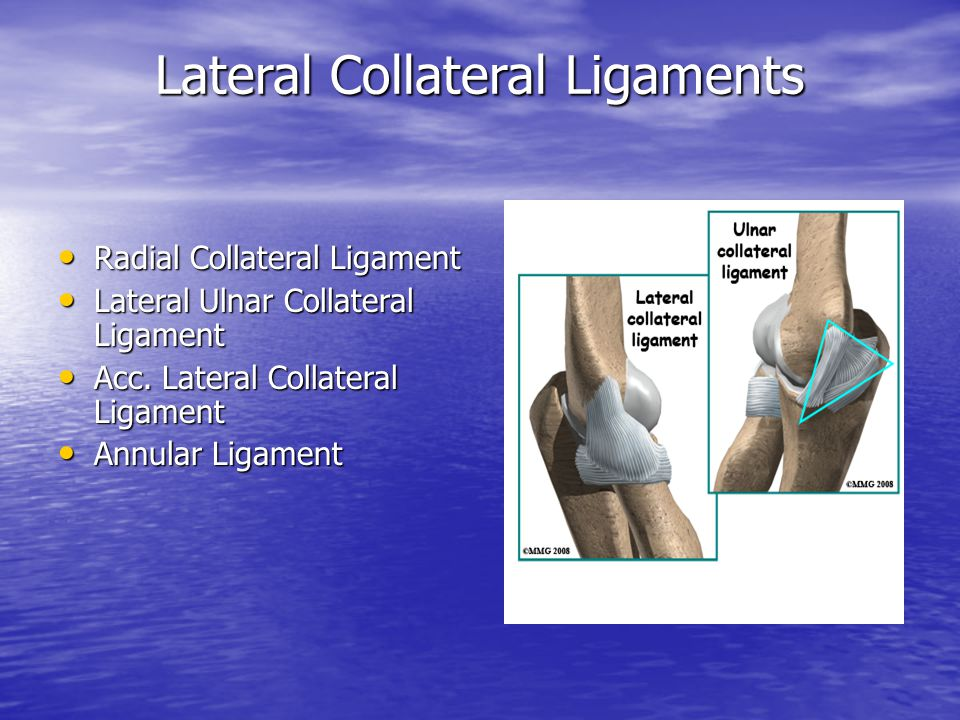Lateral Collateral Ligaments Radial Collateral Ligament Radial Collateral Ligament Lateral Ulnar Collateral Ligament Lateral Ulnar Collateral Ligament