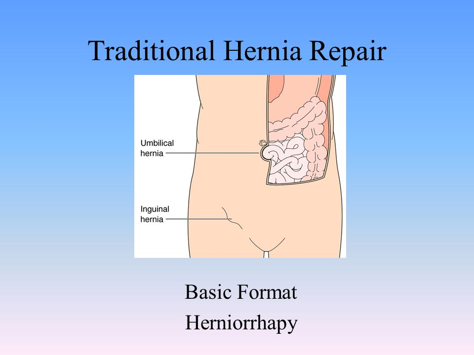 Traditional Hernia Repair Basic Format Herniorrhapy