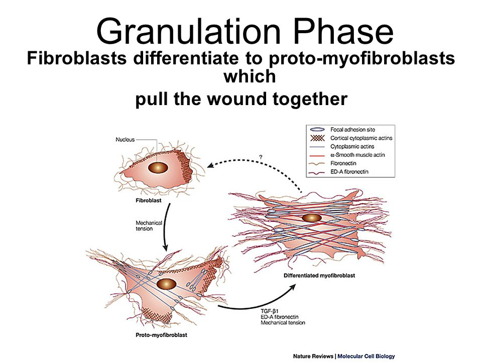 Granulation Phase Fibroblasts differentiate to proto-myofibroblasts which pull the wound together