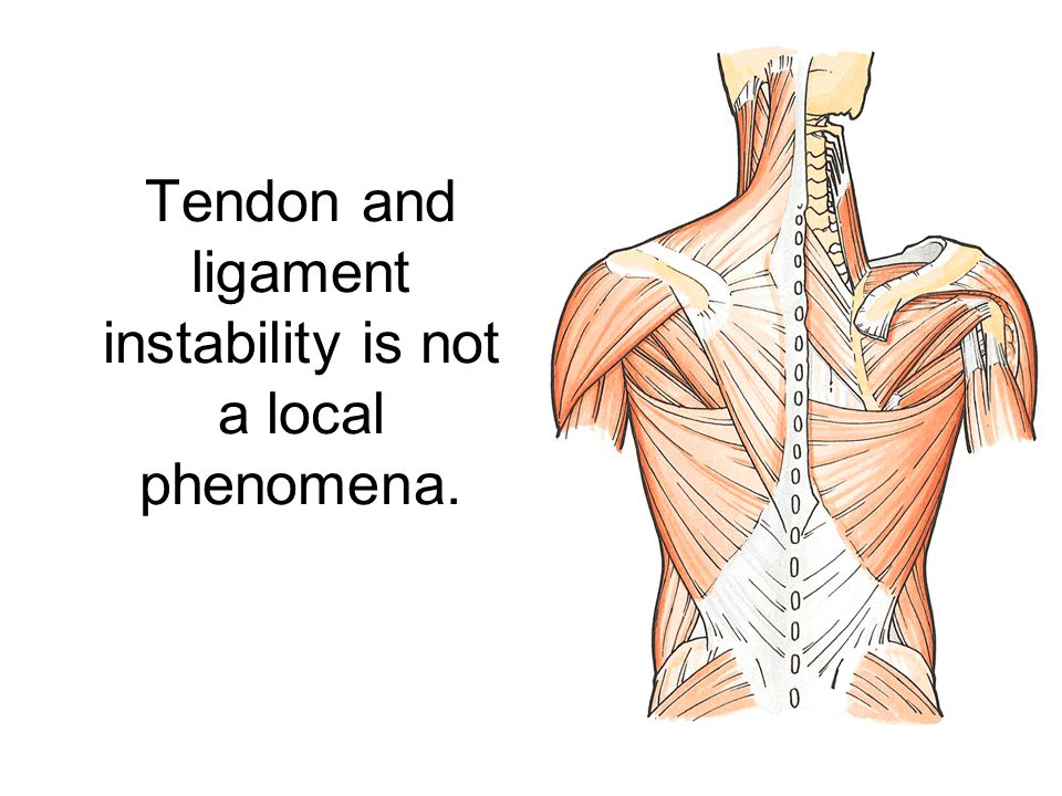 Tendon and ligament instability is not a local phenomena.