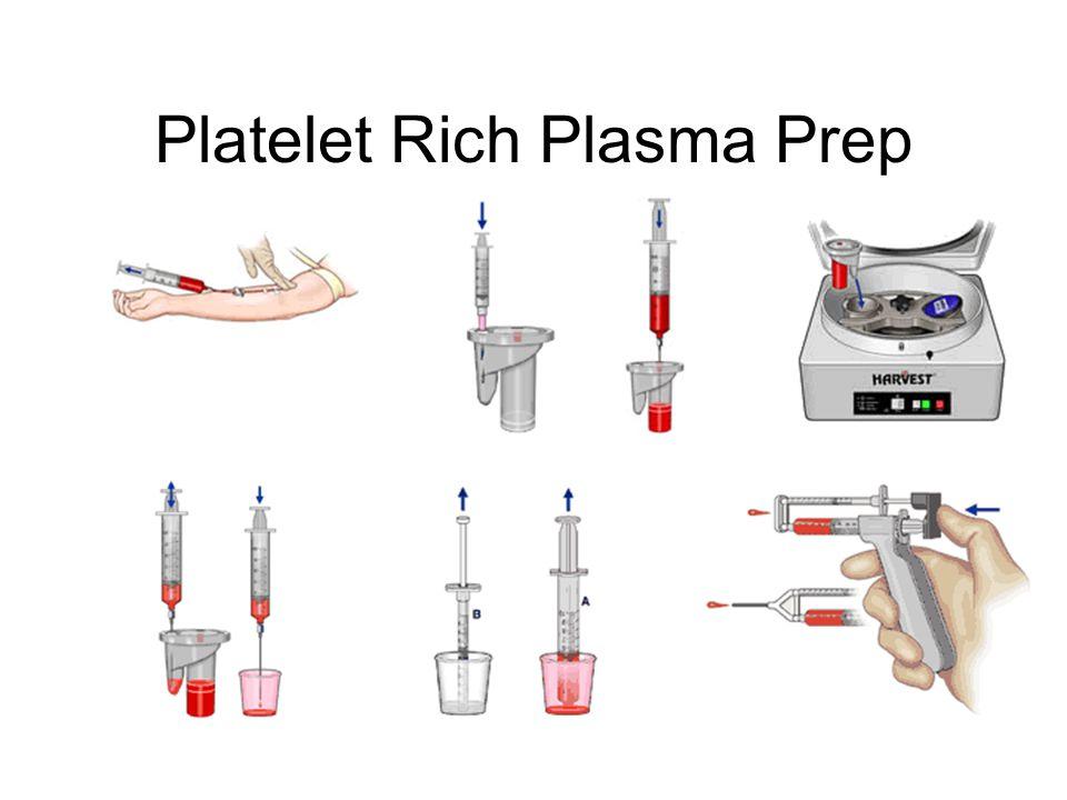 Platelet Rich Plasma Prep