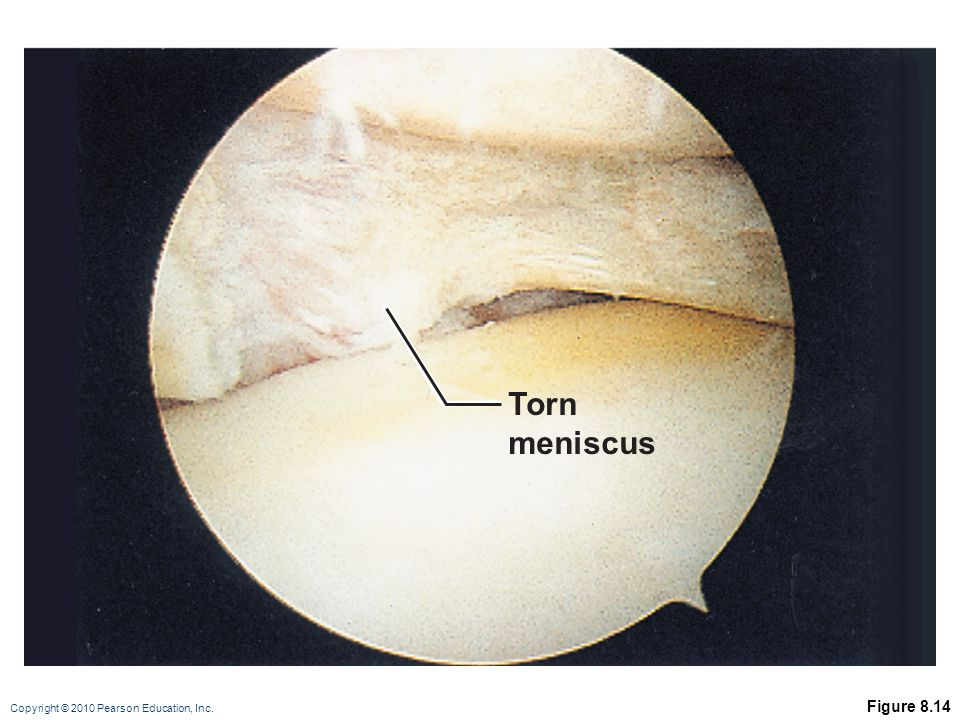 Copyright © 2010 Pearson Education, Inc. Figure 8.14 Torn meniscus