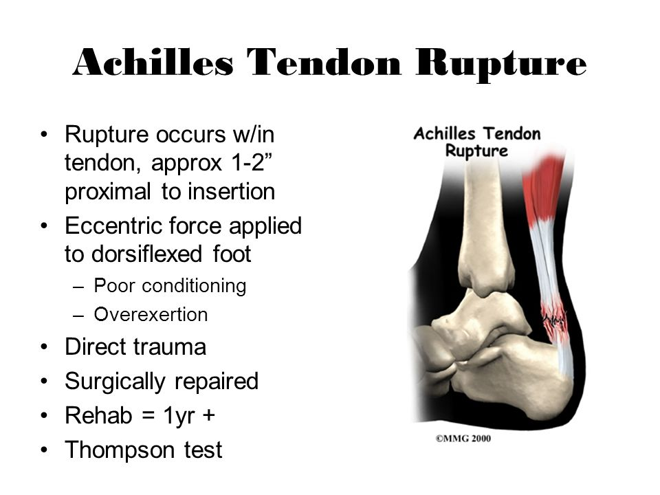 """Achilles Tendon Rupture Rupture occurs w/in tendon, approx 1-2"""" proximal to insertion Eccentric force applied to dorsiflexed foot –Poor conditioning –"""