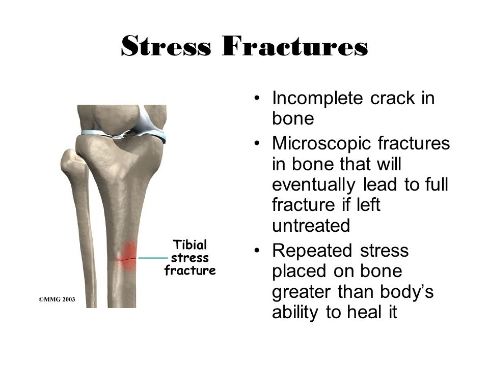 Stress Fractures Incomplete crack in bone Microscopic fractures in bone that will eventually lead to full fracture if left untreated Repeated stress p