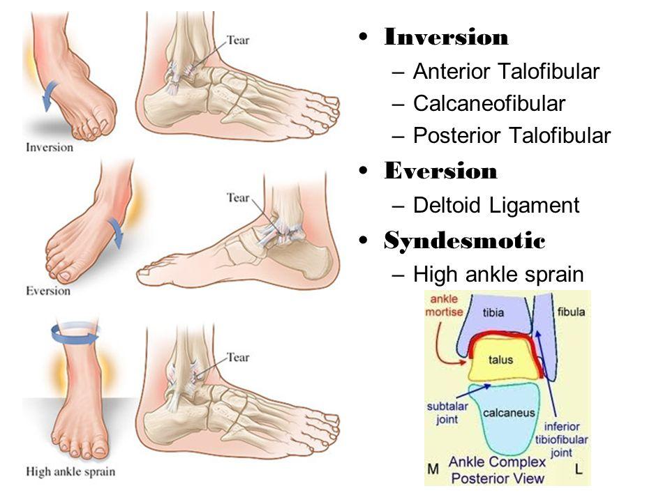 Inversion –Anterior Talofibular –Calcaneofibular –Posterior Talofibular Eversion –Deltoid Ligament Syndesmotic –High ankle sprain