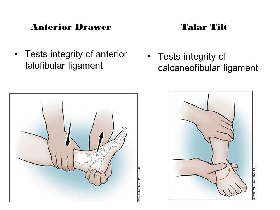 Anterior Drawer Tests integrity of anterior talofibular ligament Talar Tilt Tests integrity of calcaneofibular ligament