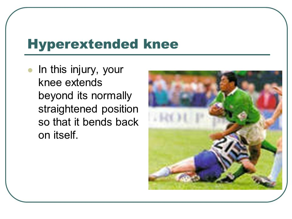 Hyperextended knee In this injury, your knee extends beyond its normally straightened position so that it bends back on itself.
