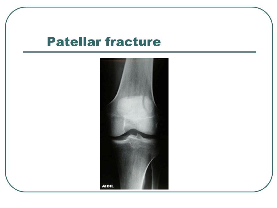 Patellar fracture