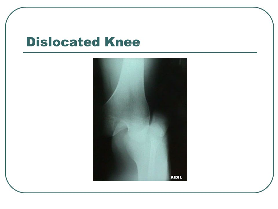 Dislocated Knee