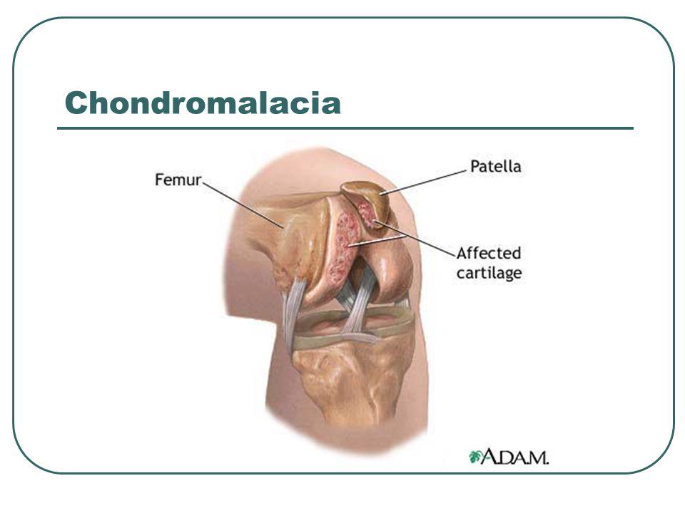 Chondromalacia