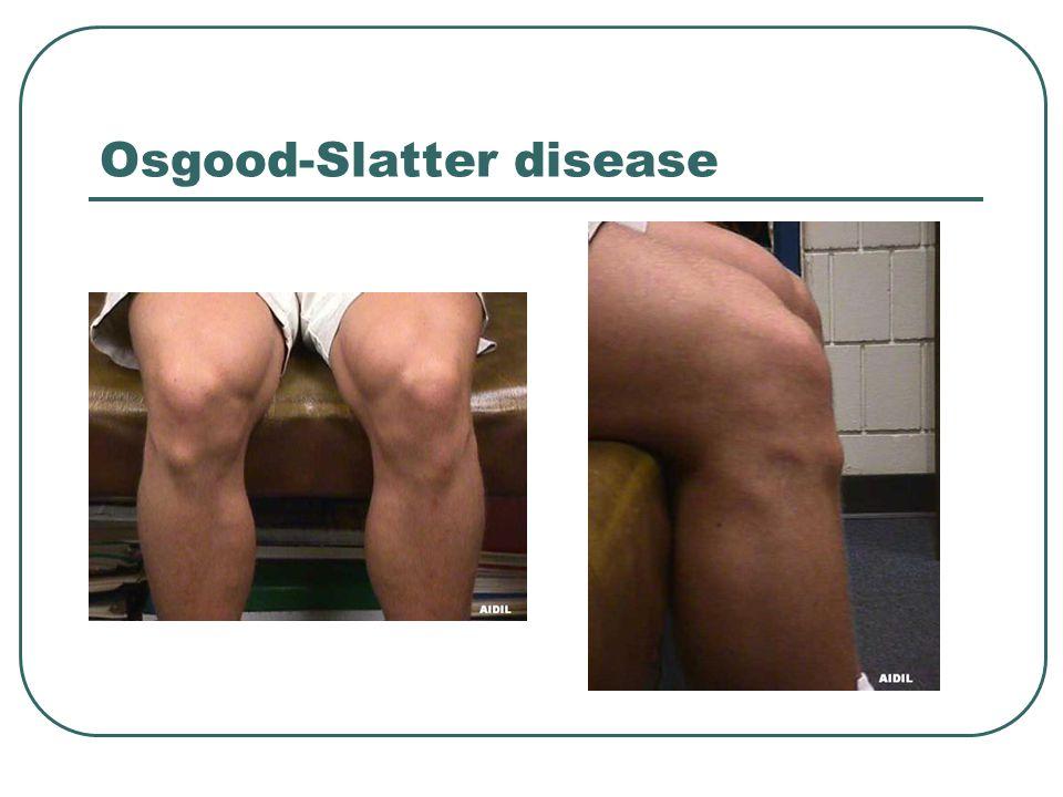 Osgood-Slatter disease