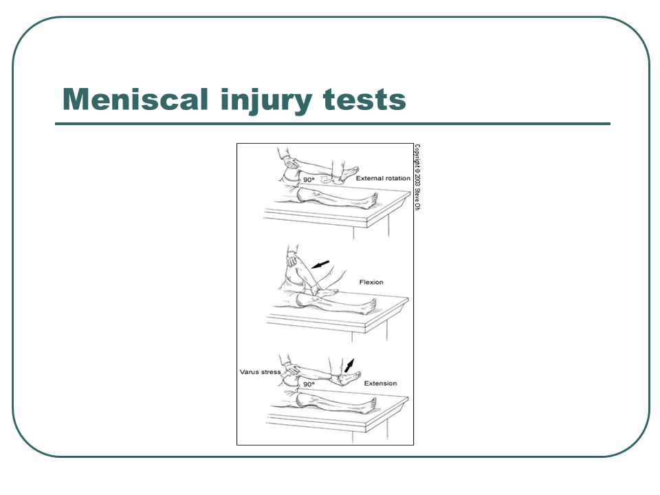 Meniscal injury tests