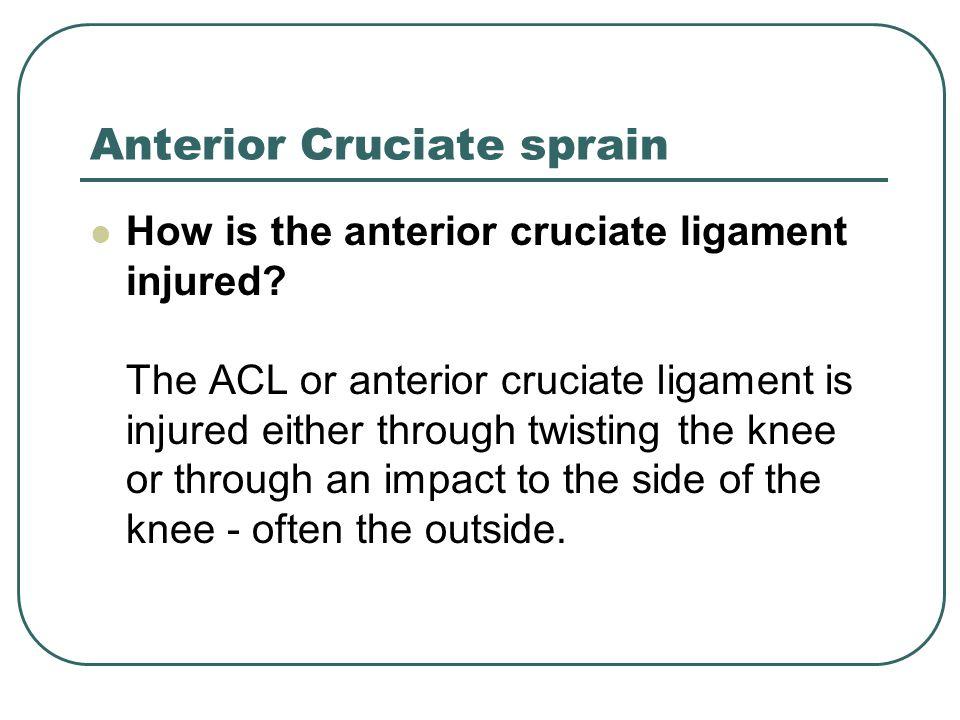 Anterior Cruciate sprain How is the anterior cruciate ligament injured? The ACL or anterior cruciate ligament is injured either through twisting the k
