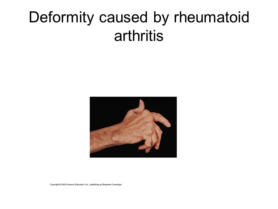 Deformity caused by rheumatoid arthritis