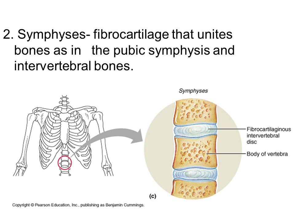 2. Symphyses- fibrocartilage that unites bones as in the pubic symphysis and intervertebral bones.