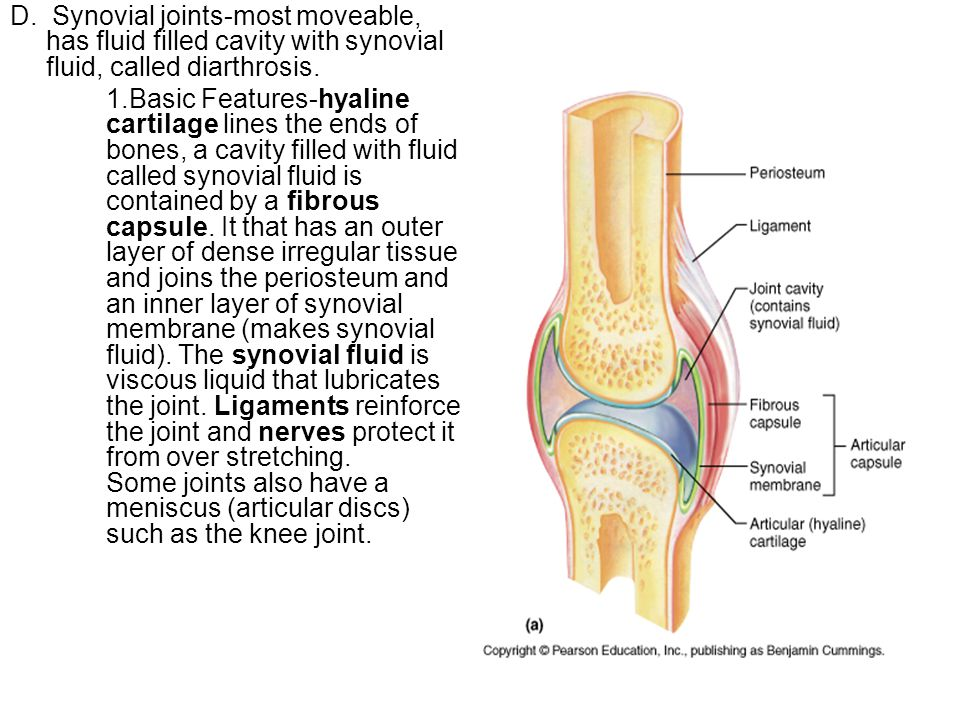 D. Synovial joints-most moveable, has fluid filled cavity with synovial fluid, called diarthrosis. 1.Basic Features-hyaline cartilage lines the ends o