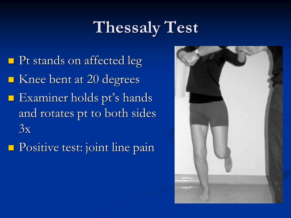 Knee Examination Meniscal Tests Meniscal Tests Joint line tenderness Joint line tenderness Thessaly test Thessaly test McMurray Test McMurray Test Squ