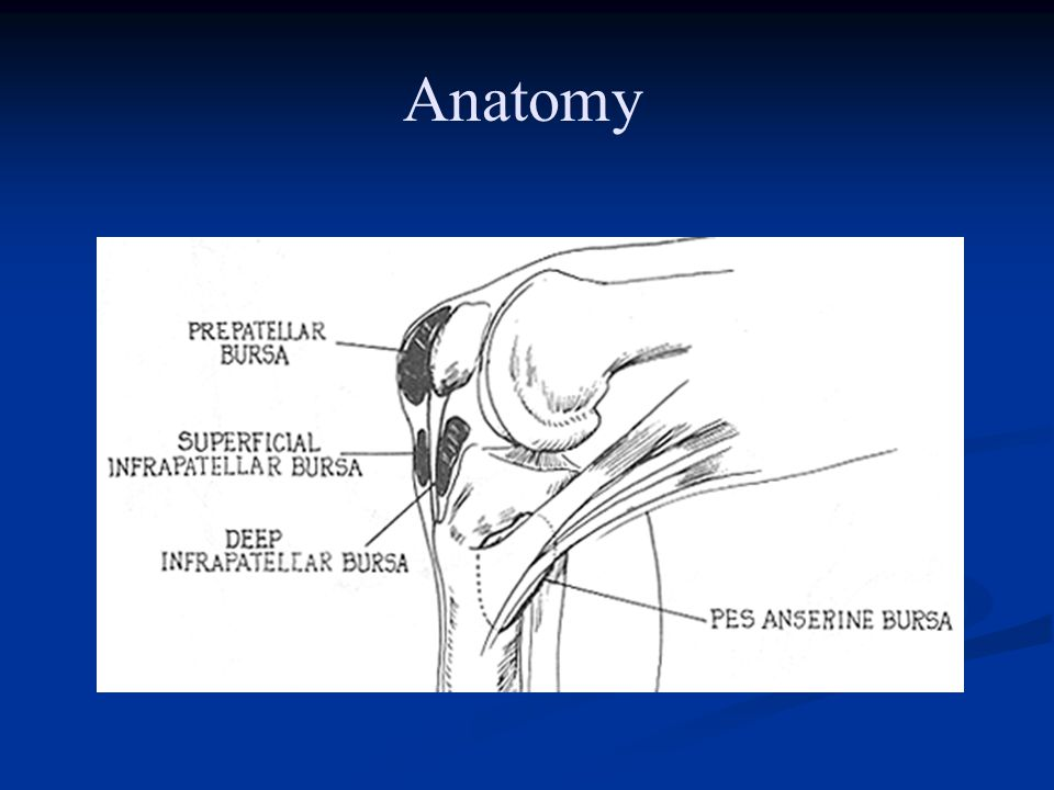 Patellofemoral Syndrome Management Management Decrease painful activities 1-3 months Decrease painful activities 1-3 months Strengthening Strengthening Quads/core/hips Quads/core/hips Flexibility Flexibility Patellar retinacula Patellar retinacula Quads & hams Quads & hams ITB, Achilles ITB, Achilles Misc: knee sleeve, orthotics Misc: knee sleeve, orthotics Weight loss (incr friction under patella) Weight loss (incr friction under patella)