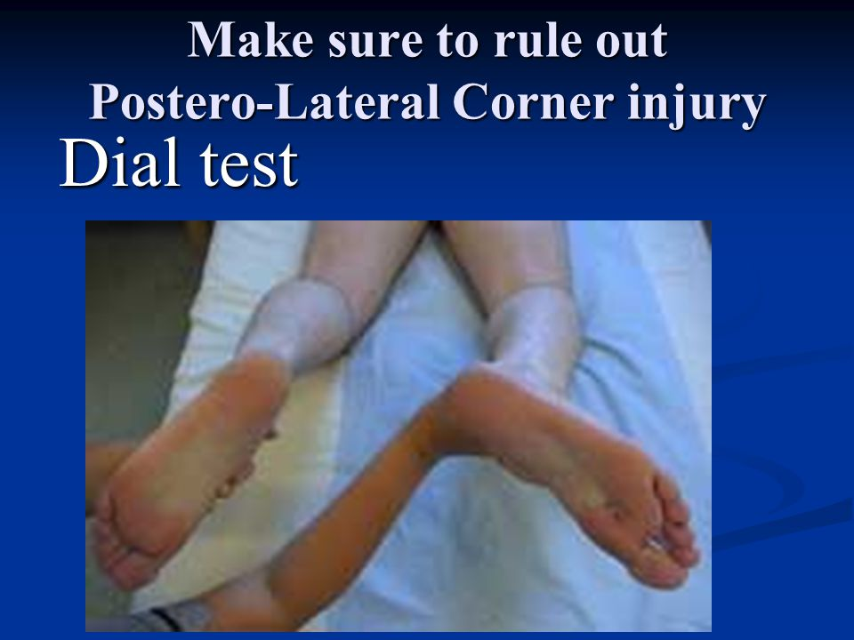 Posterior Cruciate Ligament Tear Mechanism of injury Mechanism of injury Fall onto flexed knee with plantar flexed foot and impact on tibial tubercle