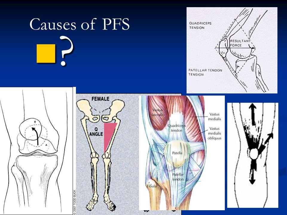 Patellofemoral Syndrome Patellofemoral Syndrome is: Patellofemoral Syndrome is: Diagnosis in nearly 25% of all knee injuries Diagnosis in nearly 25% o