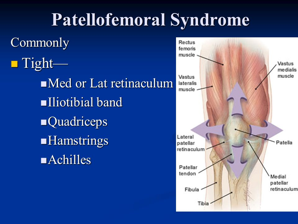 Patellofemoral Syndrome Physical exam Pain reproduced by direct pressure over patella and rocking in femoral groove Pain reproduced by direct pressure