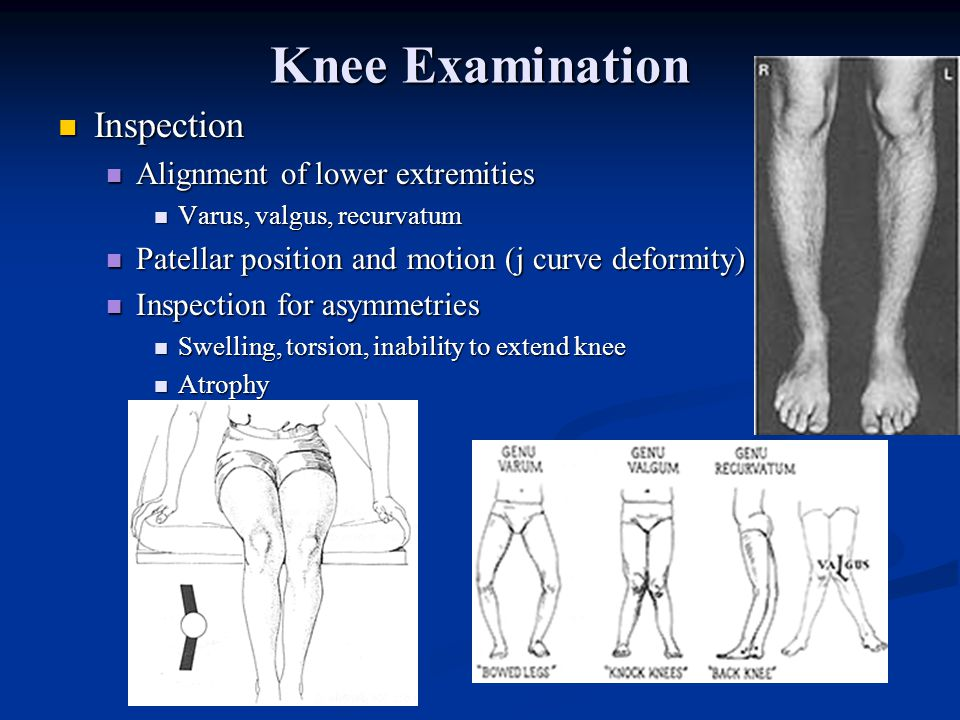 Knee Examination Inspection Inspection Alignment of lower extremities Alignment of lower extremities Varus, valgus, recurvatum Varus, valgus, recurvatum Patellar position and motion (j curve deformity) Patellar position and motion (j curve deformity) Inspection for asymmetries Inspection for asymmetries Swelling, torsion, inability to extend knee Swelling, torsion, inability to extend knee Atrophy Atrophy