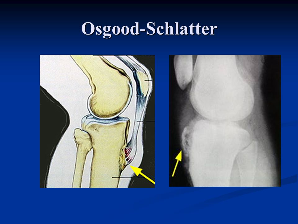 Case – painful bump on knee Diagnosis: Osgood-Schlatter