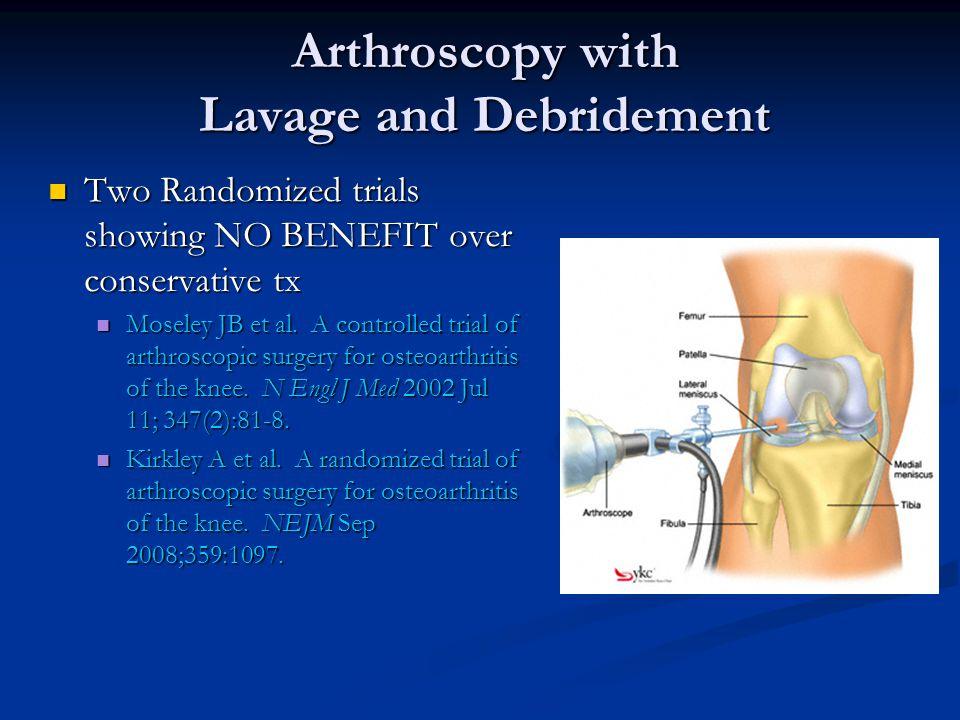 Arthroscopy Arthroscopy Joint replacement Joint replacement Cartilage transplantation Cartilage transplantation Surgery