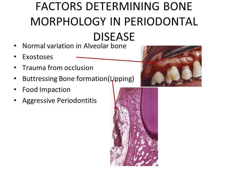 FACTORS DETERMINING BONE MORPHOLOGY IN PERIODONTAL DISEASE Normal variation in Alveolar bone Exostoses Trauma from occlusion Buttressing Bone formatio