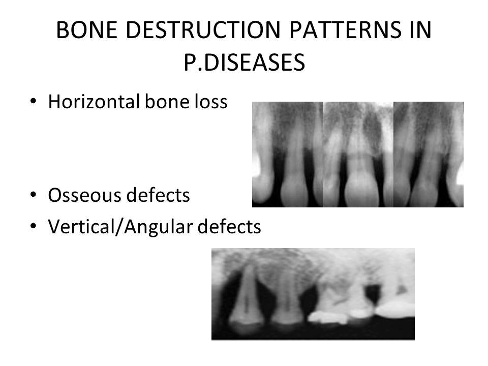 BONE DESTRUCTION PATTERNS IN P.DISEASES Horizontal bone loss Osseous defects Vertical/Angular defects
