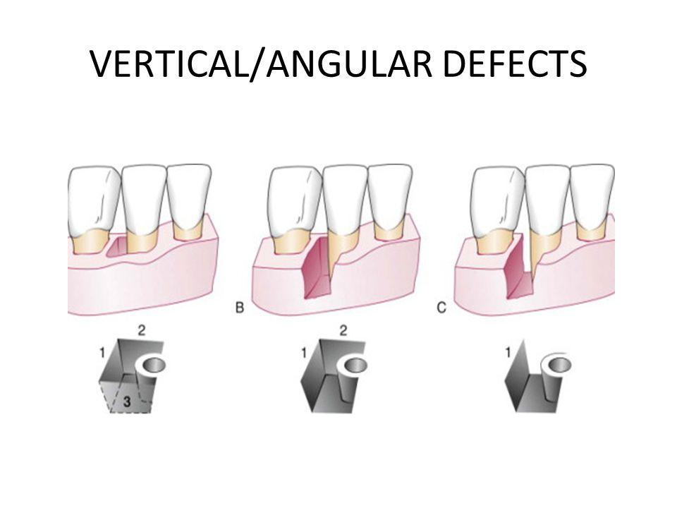 VERTICAL/ANGULAR DEFECTS