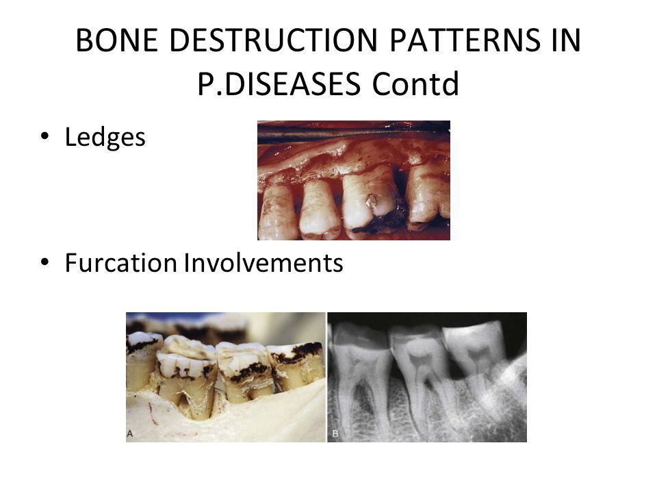 BONE DESTRUCTION PATTERNS IN P.DISEASES Contd Ledges Furcation Involvements