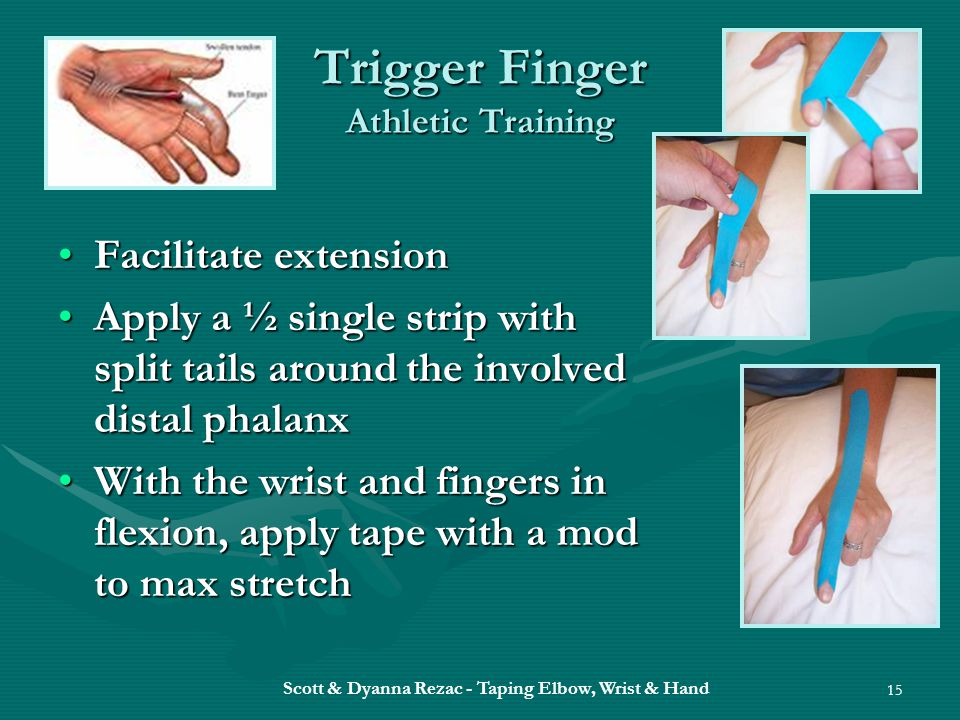Scott & Dyanna Rezac - Taping Elbow, Wrist & Hand 15 Trigger Finger Athletic Training Facilitate extensionFacilitate extension Apply a ½ single strip