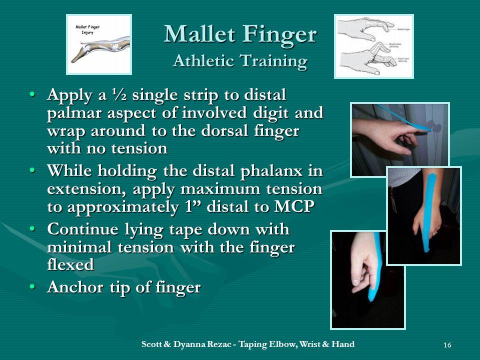 Scott & Dyanna Rezac - Taping Elbow, Wrist & Hand 16 Mallet Finger Athletic Training Apply a ½ single strip to distal palmar aspect of involved digit
