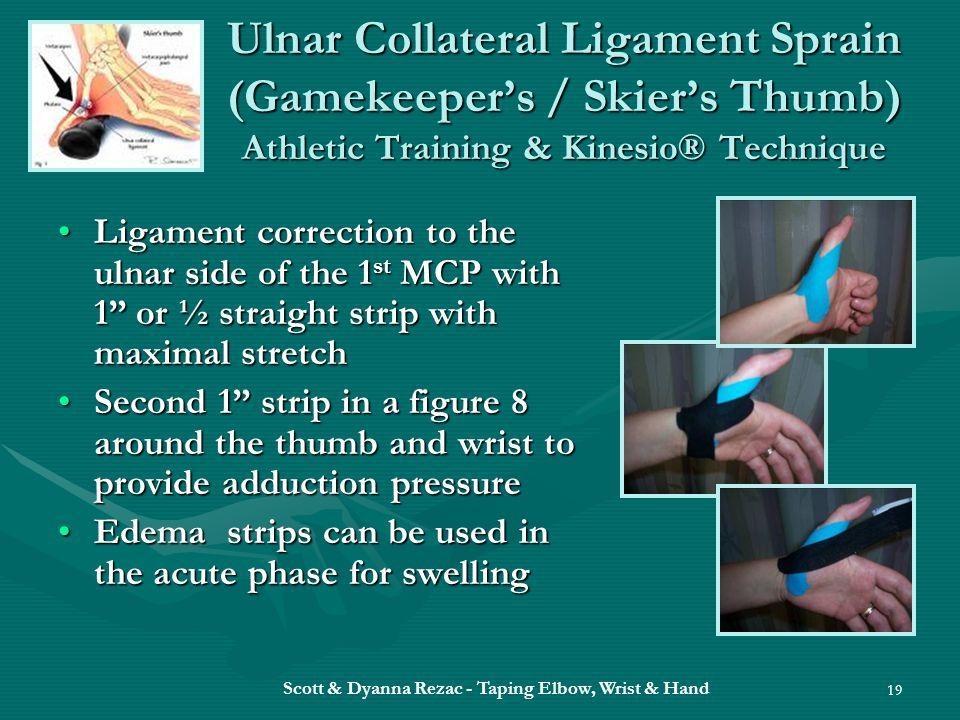 Scott & Dyanna Rezac - Taping Elbow, Wrist & Hand 19 Ulnar Collateral Ligament Sprain (Gamekeeper's / Skier's Thumb) Athletic Training & Kinesio® Tech