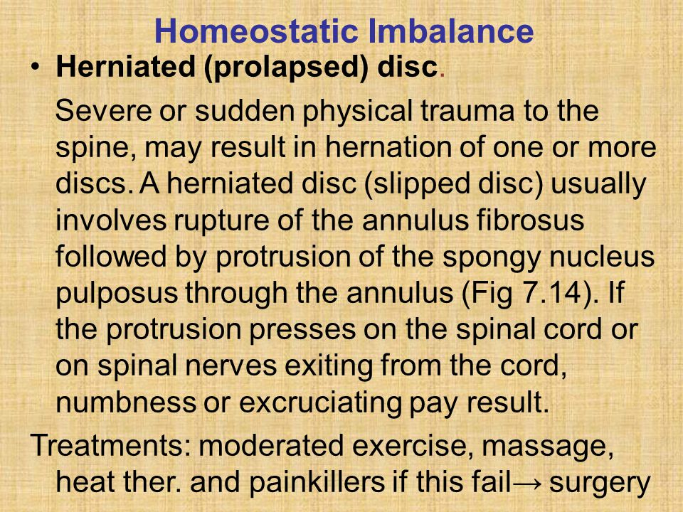 Homeostatic Imbalance Herniated (prolapsed) disc.