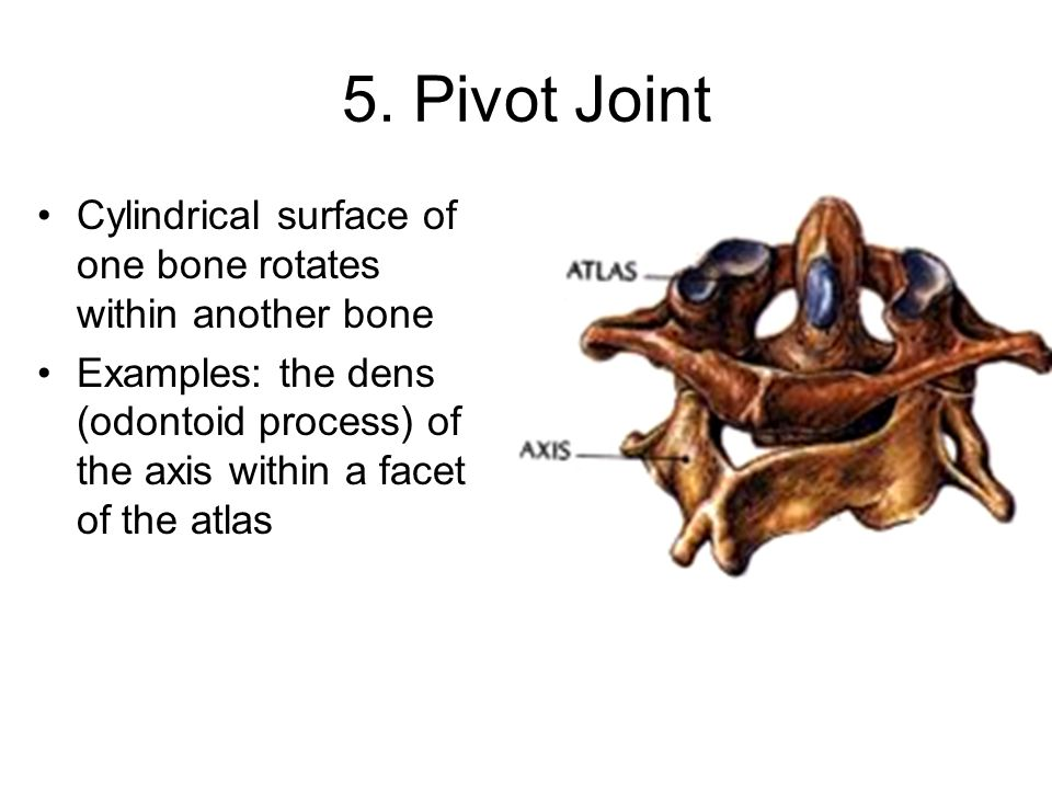 5. Pivot Joint Cylindrical surface of one bone rotates within another bone Examples: the dens (odontoid process) of the axis within a facet of the atl