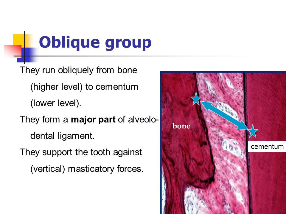 Oblique group They run obliquely from bone (higher level) to cementum (lower level). They form a major part of alveolo- dental ligament. They support