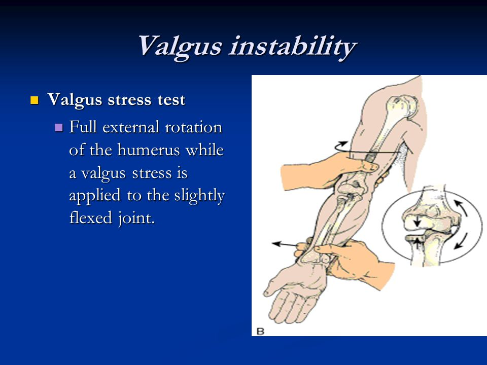 Valgus instability Valgus stress test Valgus stress test Full external rotation of the humerus while a valgus stress is applied to the slightly flexed joint.