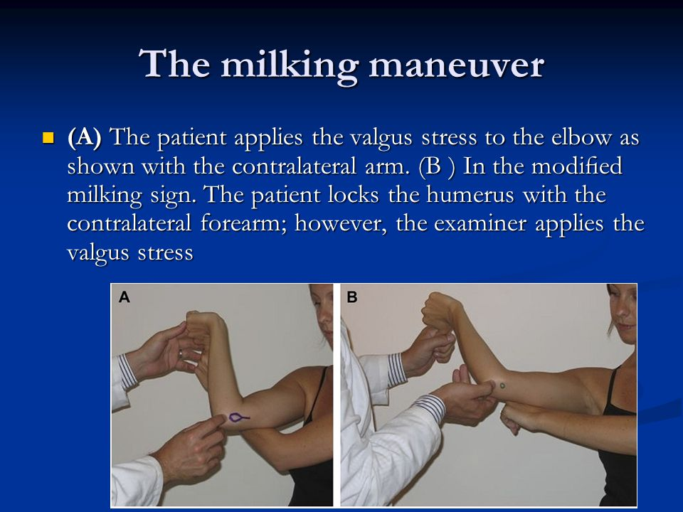 The milking maneuver (A) The patient applies the valgus stress to the elbow as shown with the contralateral arm.