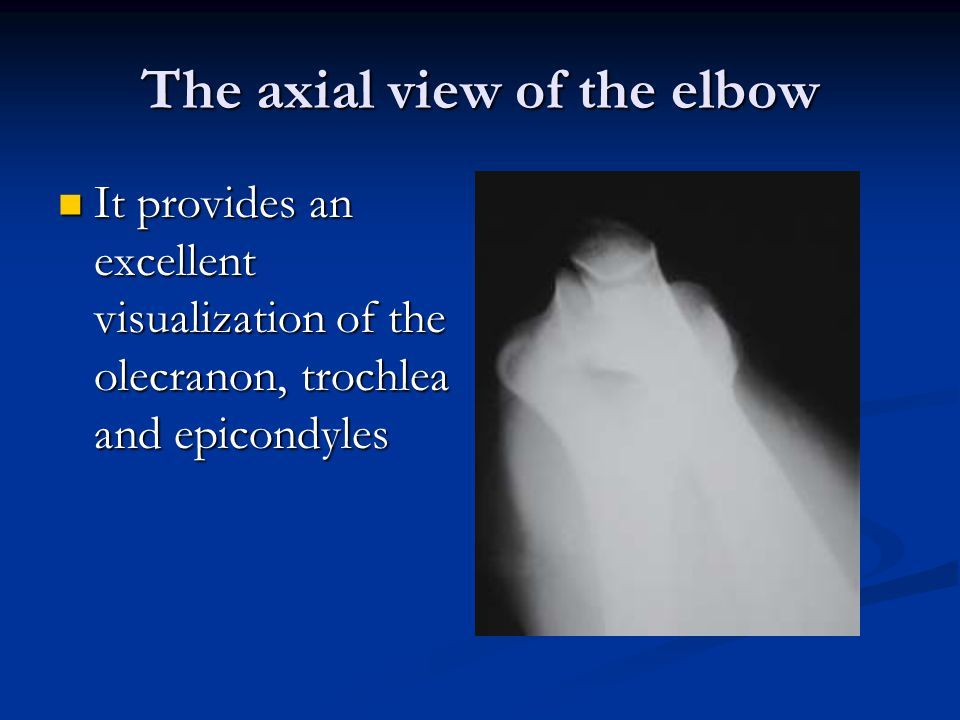 The axial view of the elbow It provides an excellent visualization of the olecranon, trochlea and epicondyles It provides an excellent visualization of the olecranon, trochlea and epicondyles