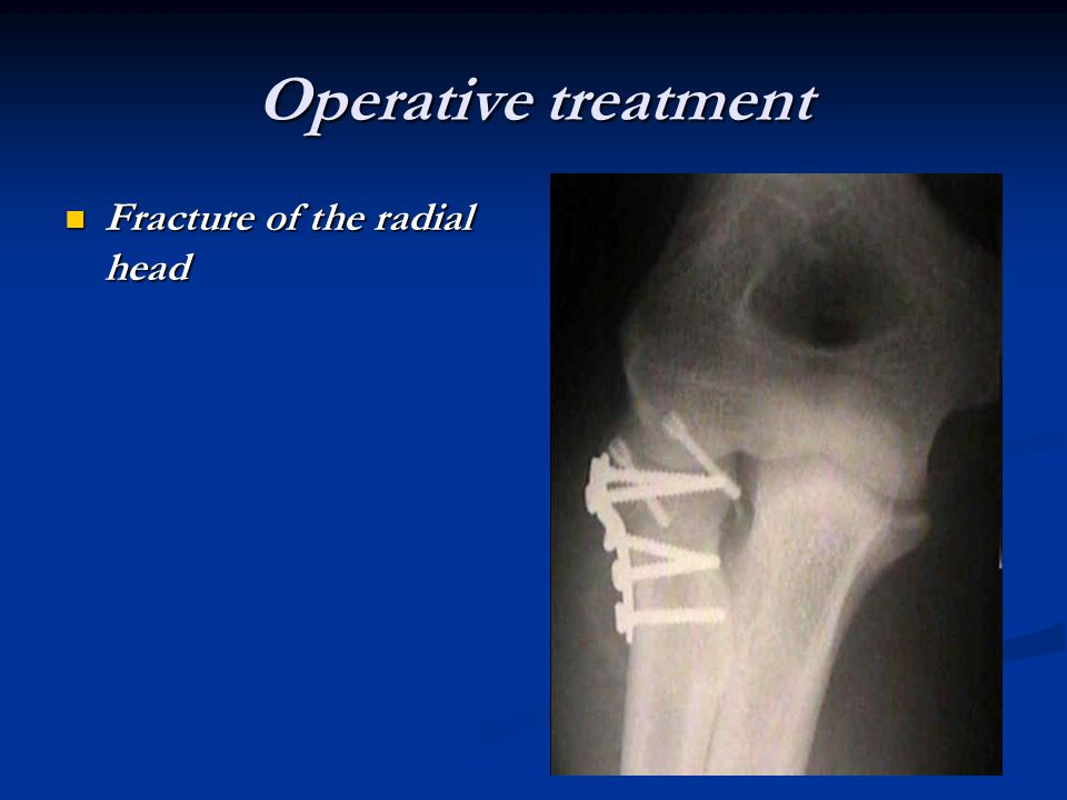Operative treatment Fracture of the radial head Fracture of the radial head