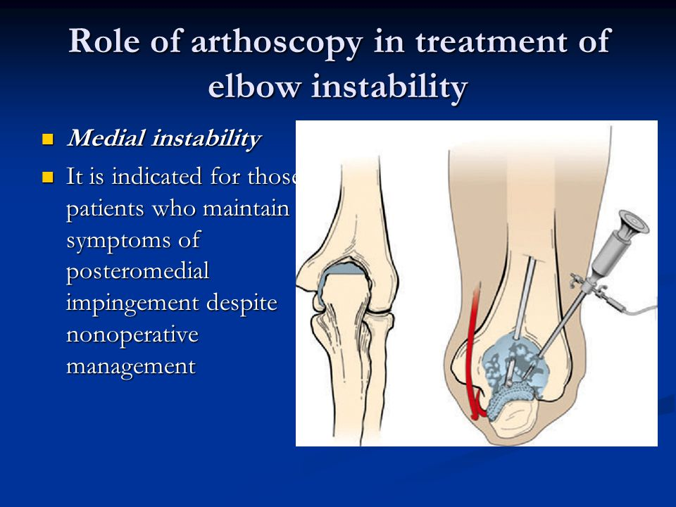 Role of arthoscopy in treatment of elbow instability Medial instability Medial instability It is indicated for those patients who maintain symptoms of posteromedial impingement despite nonoperative management It is indicated for those patients who maintain symptoms of posteromedial impingement despite nonoperative management
