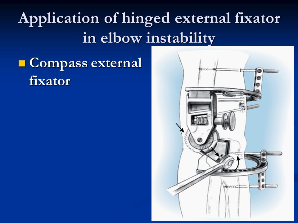 Application of hinged external fixator in elbow instability Compass external fixator Compass external fixator