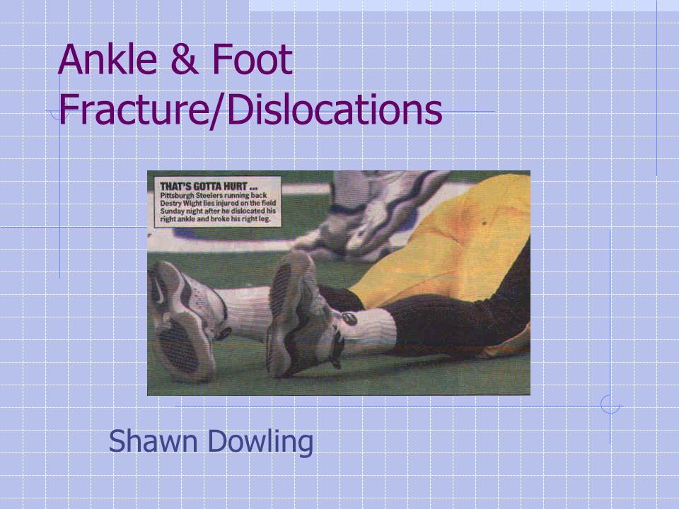 Ankle & Foot Fracture/Dislocations Shawn Dowling