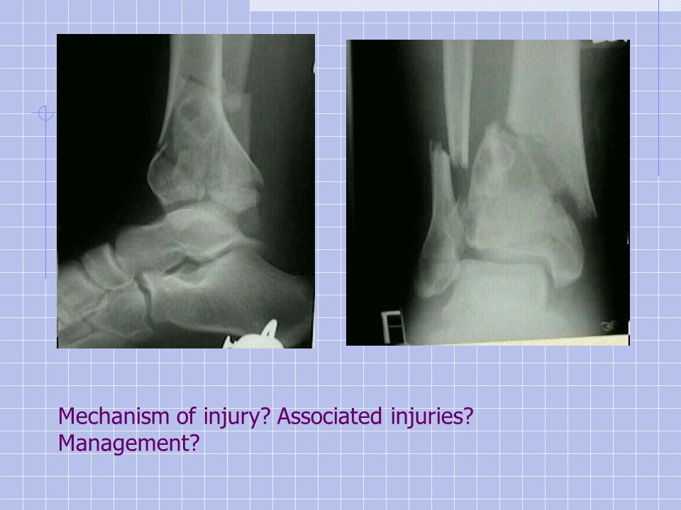 Mechanism of injury Associated injuries Management