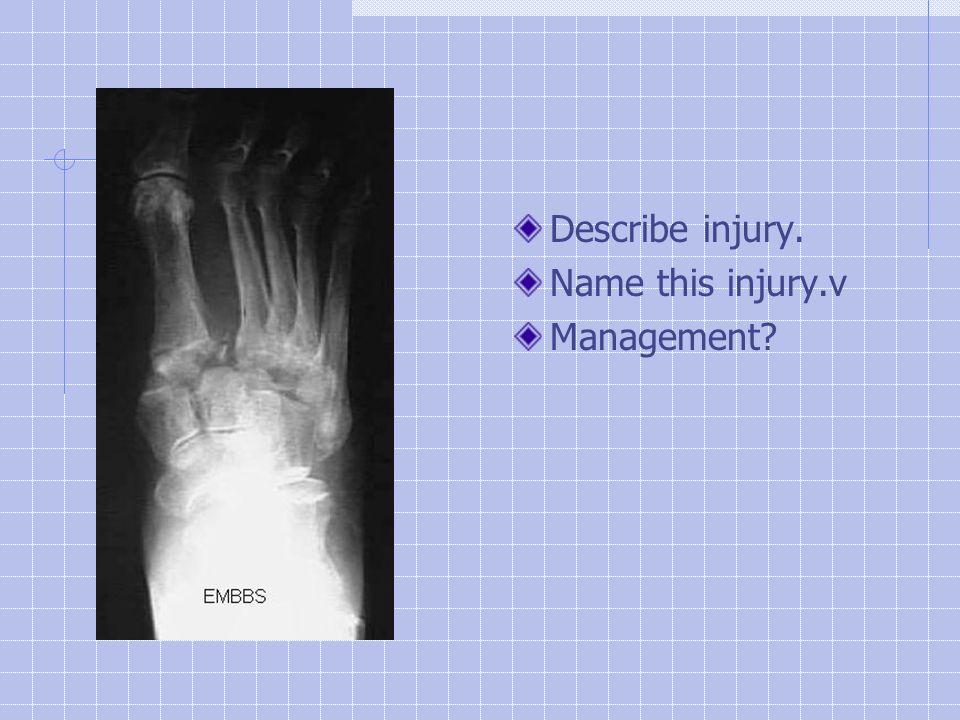 Describe injury. Name this injury.v Management?